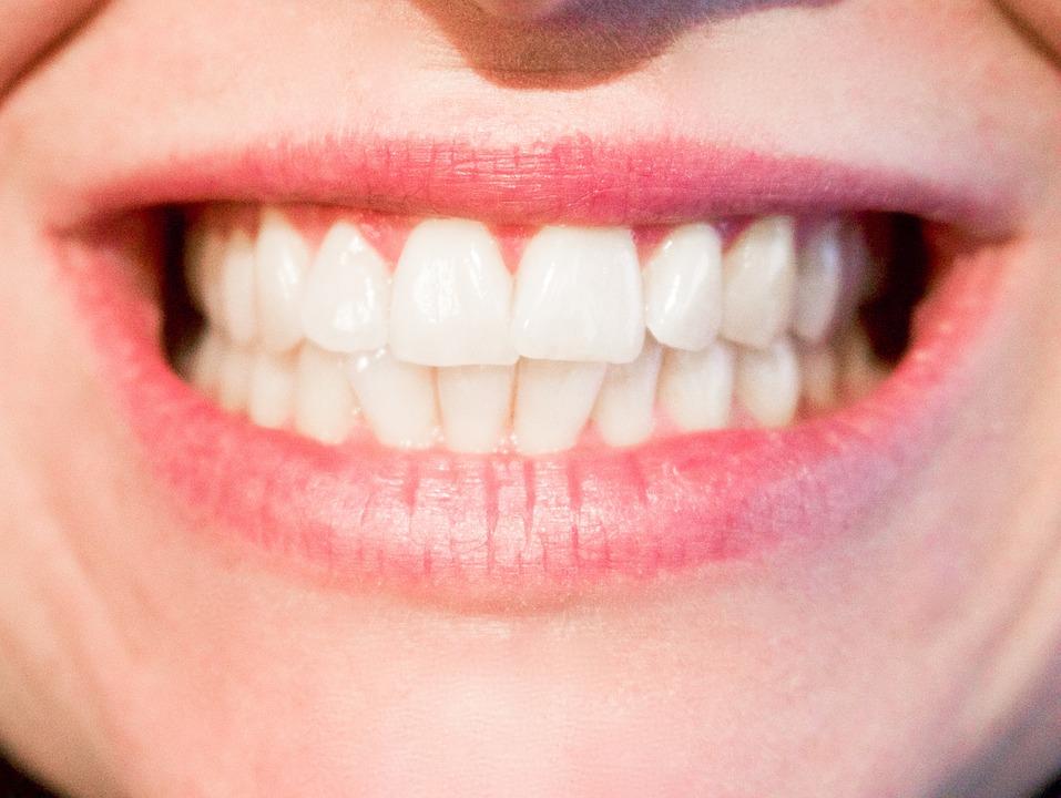 Smile Teeth_534694