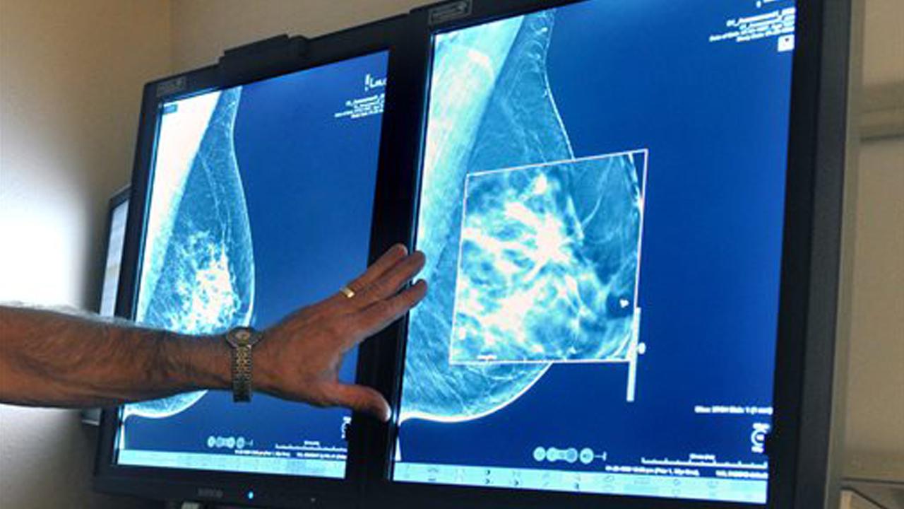 breastcancer_648883